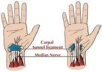 Henderson Las Vegas Chiropractor Gerber Chiropractic 702-878-0056 or 702-658-1420, Las Vegas Summerlin Carpal Tunnel Syndrome