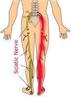 Henderson Las Vegas Chiropractor Gerber Chiropractic 702-878-0056 or 702-658-1420, Las Vegas Summerlin Sciatica, Henderson Sciatic Pain