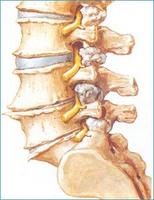Intervertebral disc, Chiropractic News, Henderson Chiropractor, Las Vegas Chiropractor, Gerber Chiropractic 702-878-0056 or 702-658-1420, Summerlin Chiropractor, Chiropractor 89146