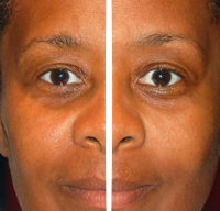 Facial rejuvenation 2