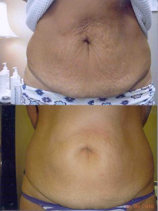 Before_After_Stomach_1