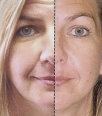 Click HERE to visit Younger Reflections Facial Rejuvenation page