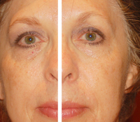 Click HERE to visit Younger Reflections Las Vegas Skin Preservation page