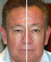 Facial rejuvenation 3