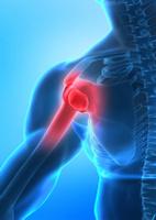 Shoulder Pain, Frozen Shoulder, Adhesive Capsulitis, Henderson Chiropractor, Las Vegas Chiropractor, Gerber Chiropractic 702-878-0056 or 702-658-1420, Summerlin Chiropractor, Chiropractor 89146