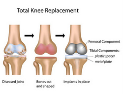 Knee Replacement 38798475-002