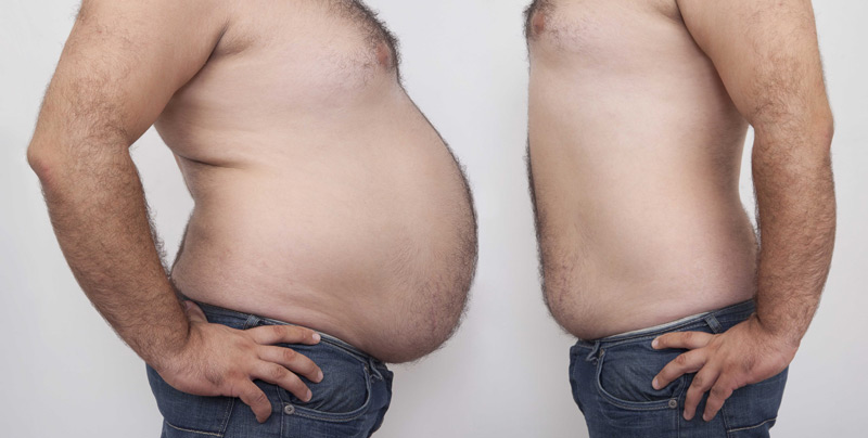 Overweight-obese-epidemic