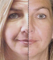 Younger Reflections Spa, Las Vegas Microcurrent Cosmetic Recovery MCR, 702-878-8873